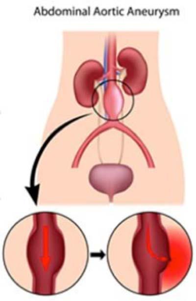 abdominal-aortic-aneurysm