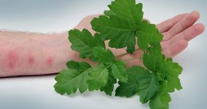 Poison Oak with Skin Rash